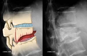 Vertebral Compression Fracture - Conditions