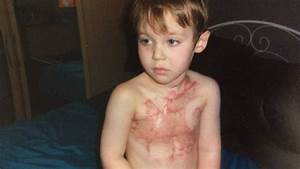 Young boy scarred for life by firework urges people to ...