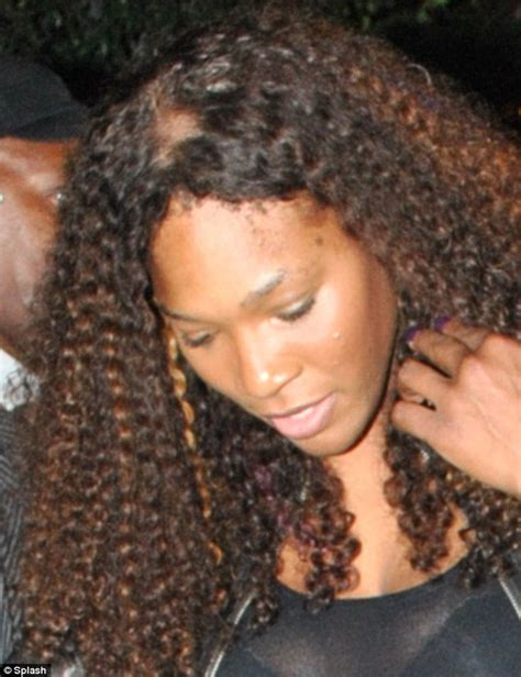 serena williams bald patch tennis stars hair extensions