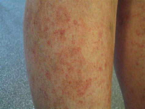 Droge huid voeten oorzaak