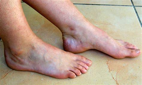 douleur sur le cote exterieur du pied hallux valgus et autres pathologies du pied et de la cheville