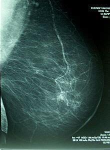 mammographie wikipedia