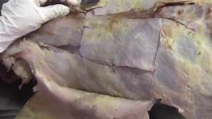 Anterior Abdominal Wall Dissection