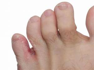 bigstock-Athlete-s-Foot-tinea-Pedis-36876223SM_800x6001.jpg  Tinea Infections Athlete's Foot