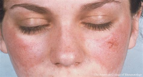 Pictures Of Sle Resumes by Understanding Sle Associated Skin Injury May Open The Door