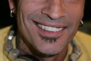 Diamonds in Your Teeth