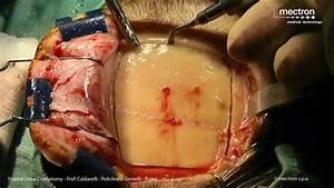 Frontal Sinus Craniotomy Prof Calderelli - YouTube