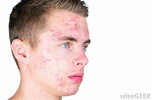 What is Acne? (with pictures)