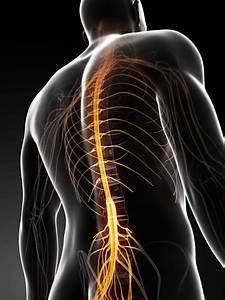 Arachnoiditis Of The Spine