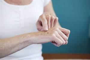 Manchas de la edad y como prevenirlas for Manchas de la edad y como prevenirlas