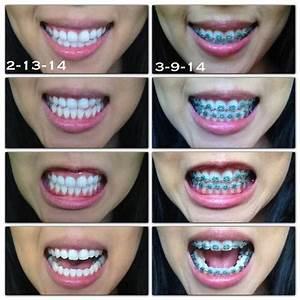 surviving braces | Tumblr