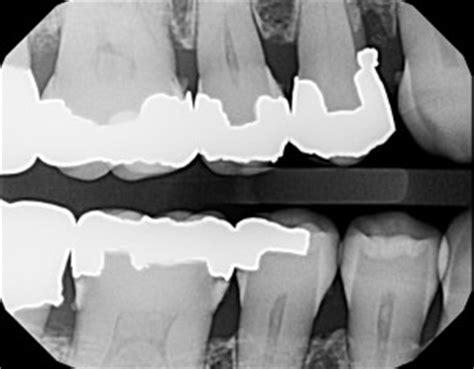 bad dental work defective fillings