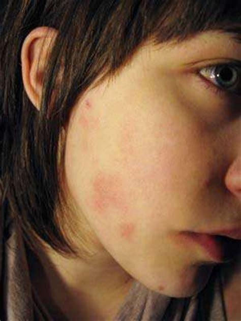gluten  ruining  skin celiaccom
