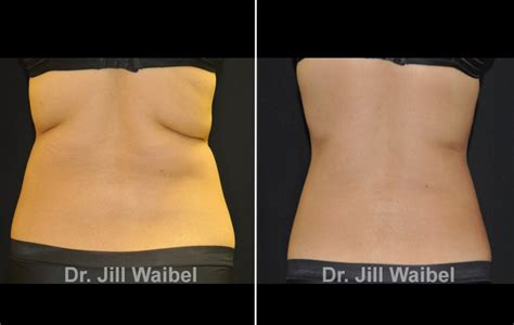 Miami Dermatology Laser Institute Fl Coolsculpt Body
