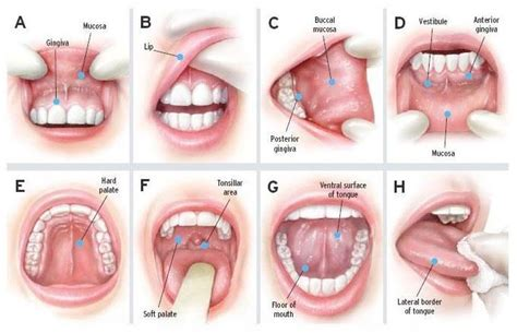 r series lotion throat cancer symptoms risk factors stages and treatment
