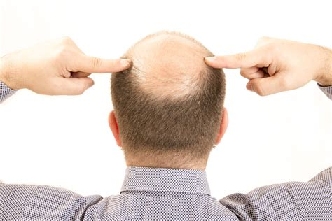 Tratamiento para la caída del cabello y la calvicie