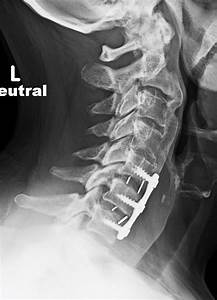 Complications Of Neck And Spine Apparatus  A Gallery
