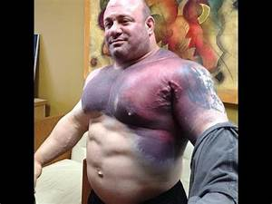 Top-Most 5 Worst Bodybuilding Injuries Happened Ever ...