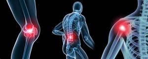 Деформированный артроз коленного сустава симптомы и лечение
