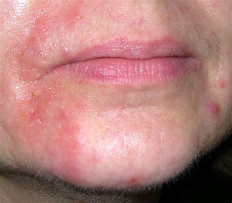 periorale dermatitis vermeidung statt pflege