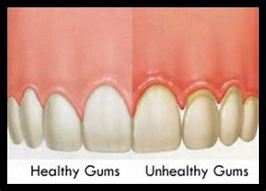 Healthy Vs Unhealthy Gums