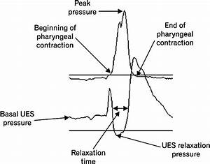 Line Plot Of Upper Esophageal Sphincter And Pharyngeal Response To A