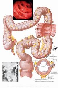 Free For Health  Diverticulitis Attacks
