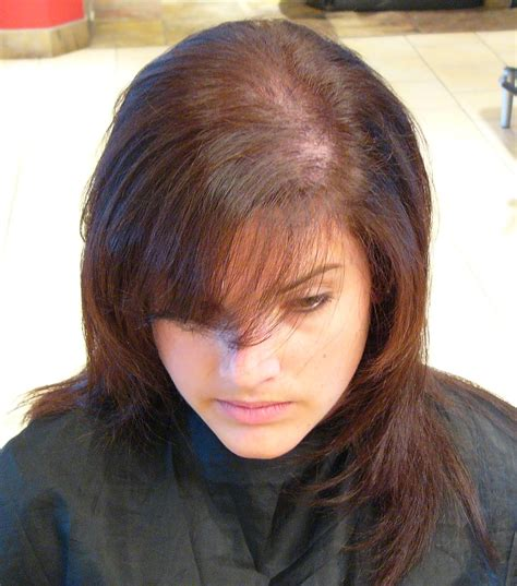 Bangs To Cover Hair Loss Photos Thinning Hair Women