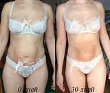 Как похудеть на 5 кг за неделю на капусте