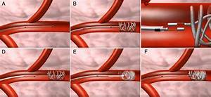 Efficacy And Safety Of Super Selective Bronchial Artery