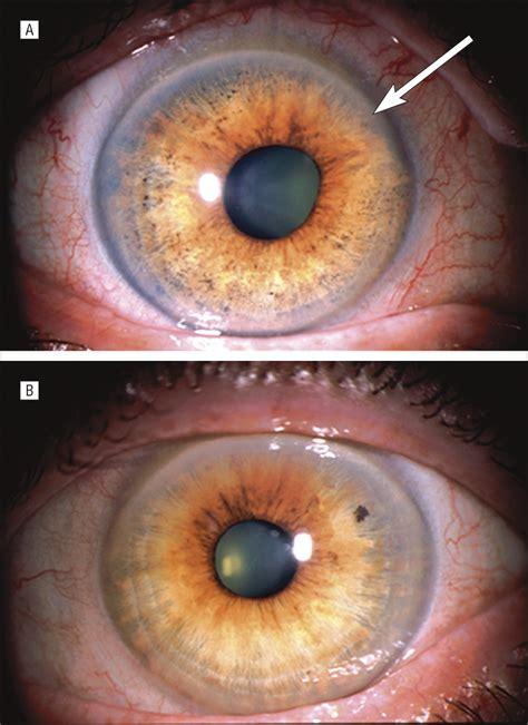 uveal melanoma masquerading  pigment dispersion glaucoma