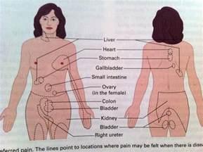 Gallbladder Back Pain Location