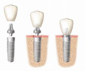 What are Dental Implants, Abutments and Crowns?   AAID ...