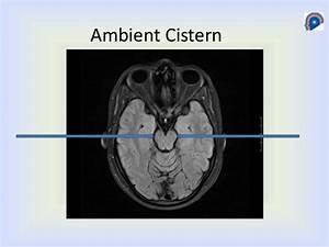 Cisterns Anatomy