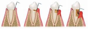 zahnfleischrückgang nach parodontosebehandlung