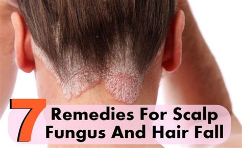 7 Home Remedies For Scalp Fungus And Hair Fall