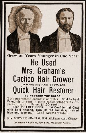 Vintage baldness ads and hair loss cures | Hair Loss News
