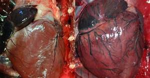 Normal heart (A) Vs. enlarged heart (B) in cardiomegally ...