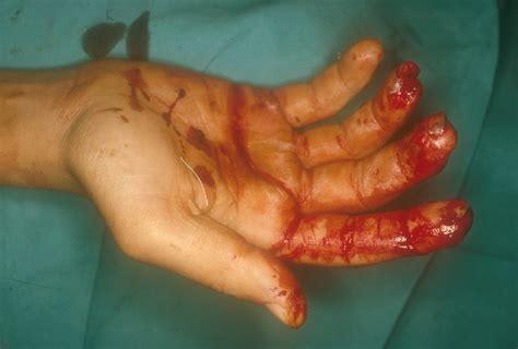 corte en la mano heridas