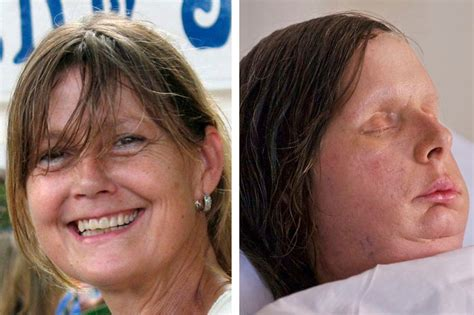 Woman Attacked By Chimp Shows New Face The New York Times