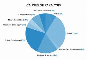 Paralysis Homeopathic Treatment