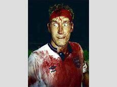 Top 10 footballing bravehearts Terry Butcher Goalcom
