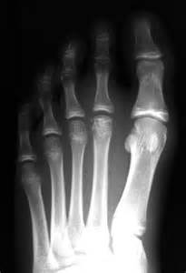 X-ray of Left Foot and Bones