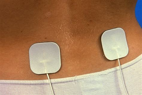 Tens Transcutaneous Electrical Nerve Stimulation Nhs