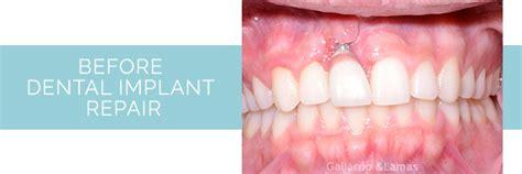 dental implant repair miami fl