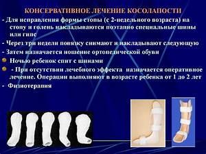 Гимнастика от остеохондроза шейного отдела при грыжи