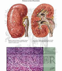 Acute Pyelonephritis  Pathology