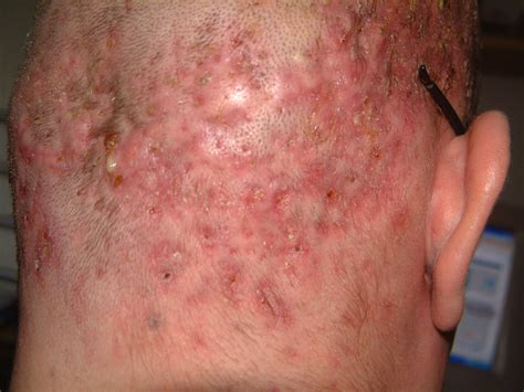 Medical Pictures Info Folliculitis