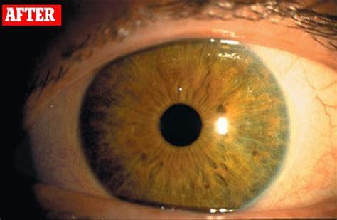 latisse eye color change did latisse to make my eyelashes lusher turn my green