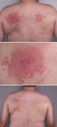 tub rash contagious tub folliculitis treatment pictures photos